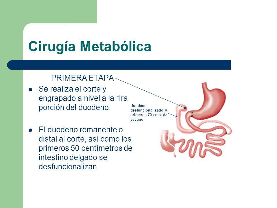 Cirugía Metabólica PRIMERA ETAPA Se realiza el corte y engrapado a nivel a la 1ra porción del duodeno. El duodeno remanente o distal al corte, así com