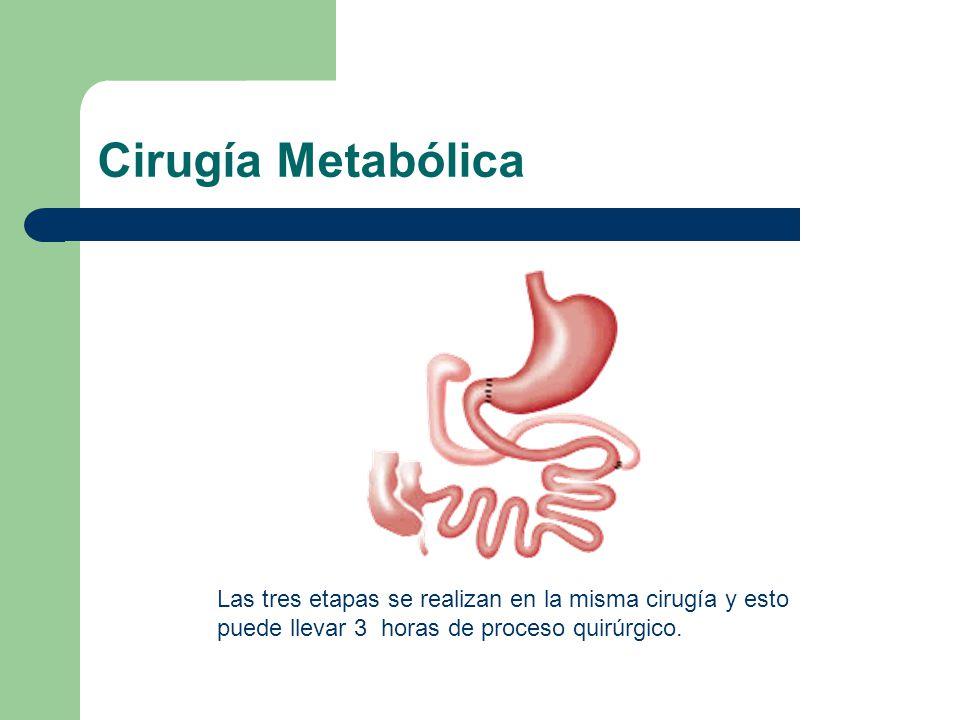 Cirugía Metabólica Las tres etapas se realizan en la misma cirugía y esto puede llevar 3 horas de proceso quirúrgico.
