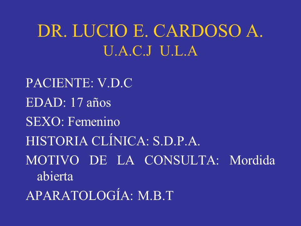 DR. LUCIO E. CARDOSO A. U.A.C.J U.L.A PACIENTE: V.D.C EDAD: 17 años SEXO: Femenino HISTORIA CLÍNICA: S.D.P.A. MOTIVO DE LA CONSULTA: Mordida abierta A