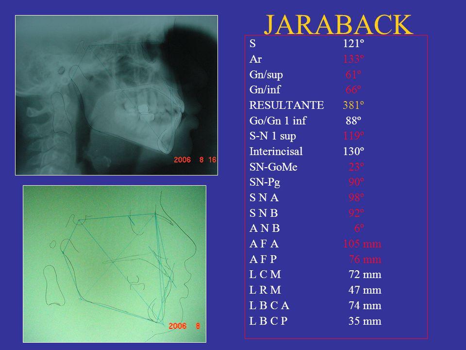 JARABACK S121º Ar133º Gn/sup 61º Gn/inf 66º RESULTANTE381º Go/Gn 1 inf 88º S-N 1 sup119º Interincisal130º SN-GoMe 23º SN-Pg 90º S N A 98º S N B 92º A