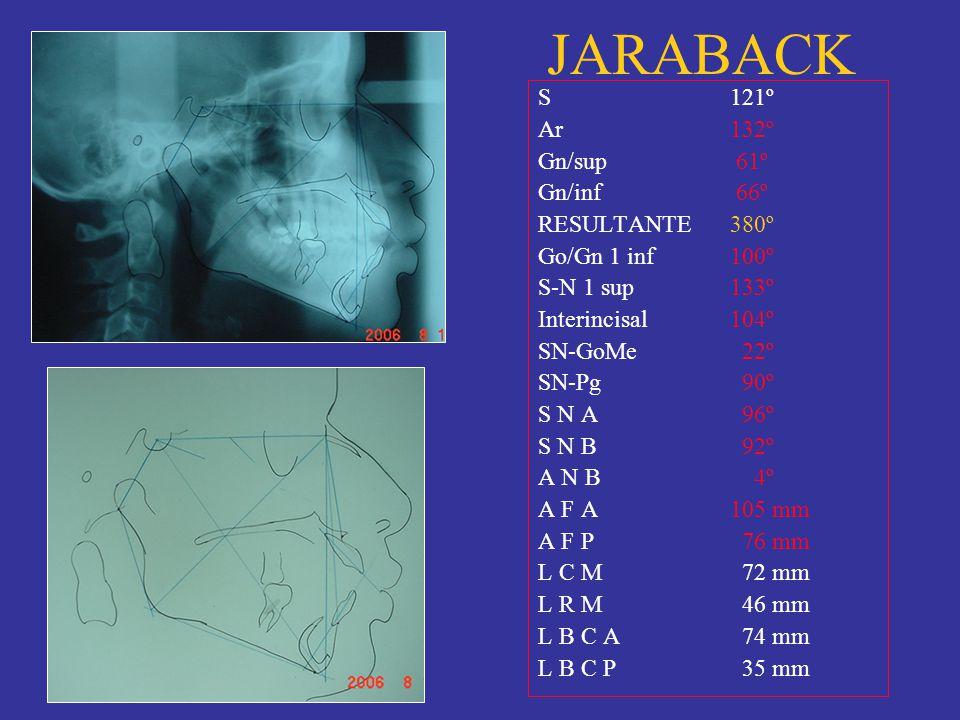 JARABACK S121º Ar132º Gn/sup 61º Gn/inf 66º RESULTANTE380º Go/Gn 1 inf100º S-N 1 sup133º Interincisal104º SN-GoMe 22º SN-Pg 90º S N A 96º S N B 92º A