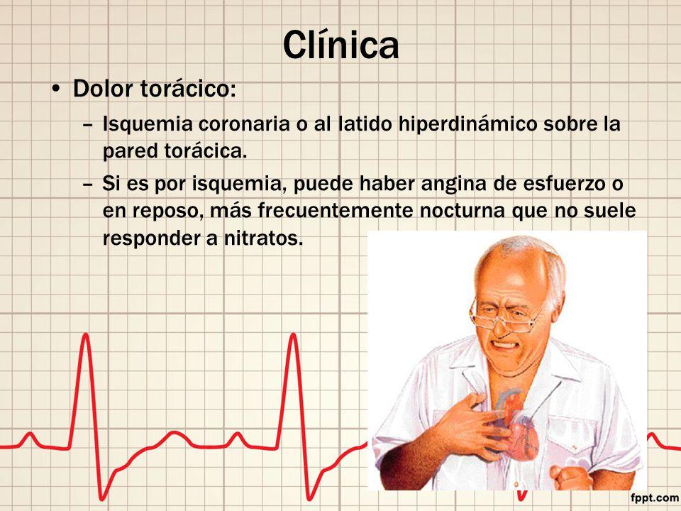 Clínica Dolor torácico: –Isquemia coronaria o al latido hiperdinámico sobre la pared torácica.