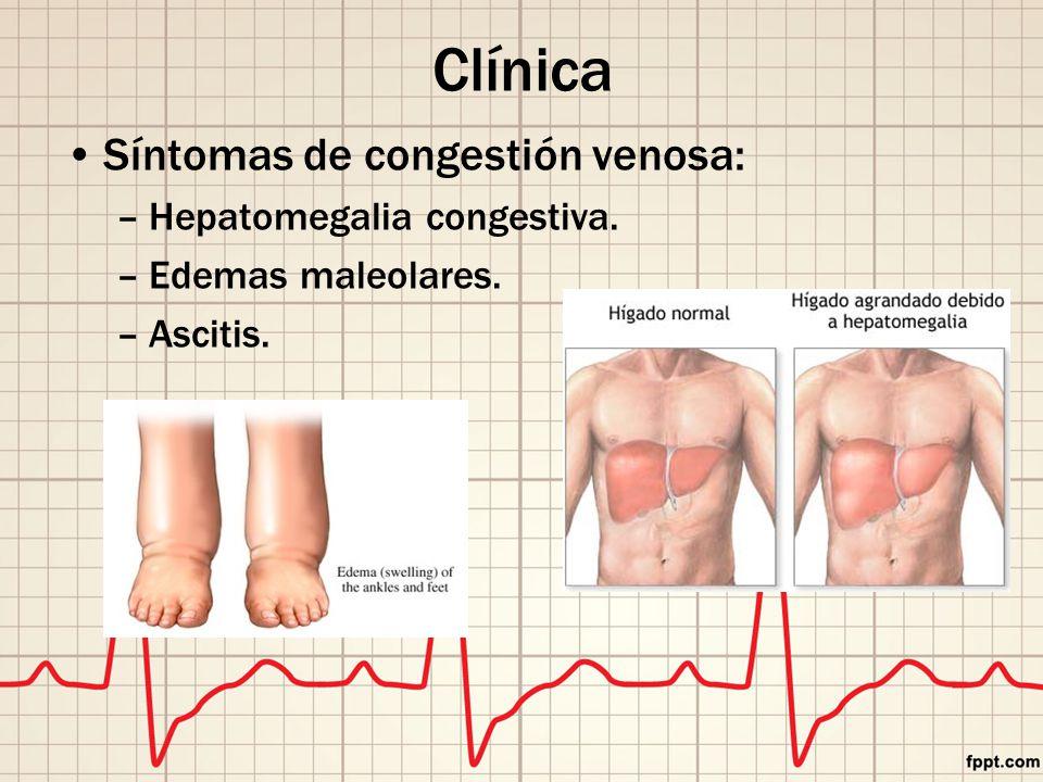 Clínica Síntomas de congestión venosa: –Hepatomegalia congestiva. –Edemas maleolares. –Ascitis.