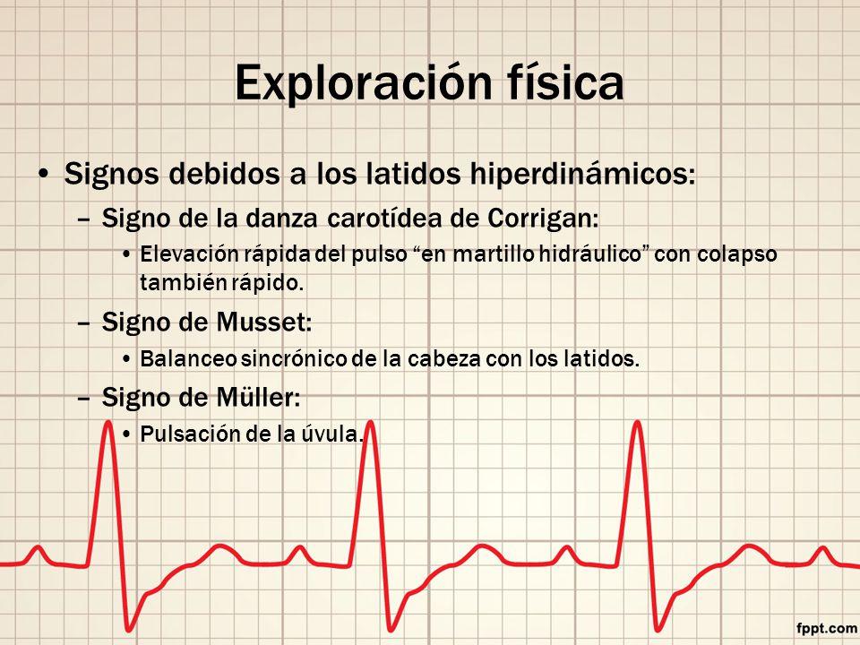 Exploración física Signos debidos a los latidos hiperdinámicos: –Signo de la danza carotídea de Corrigan: Elevación rápida del pulso en martillo hidráulico con colapso también rápido.