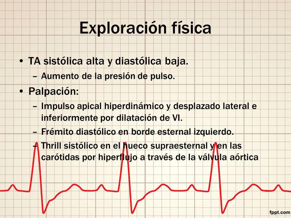 Exploración física TA sistólica alta y diastólica baja.