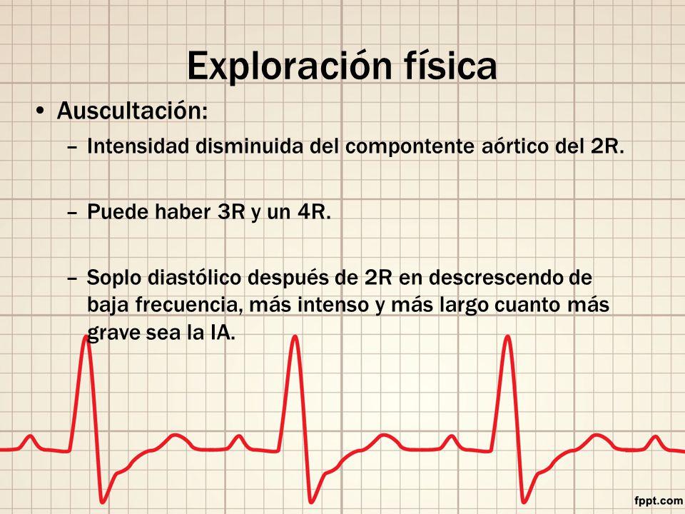 Exploración física Auscultación: –Intensidad disminuida del compontente aórtico del 2R.