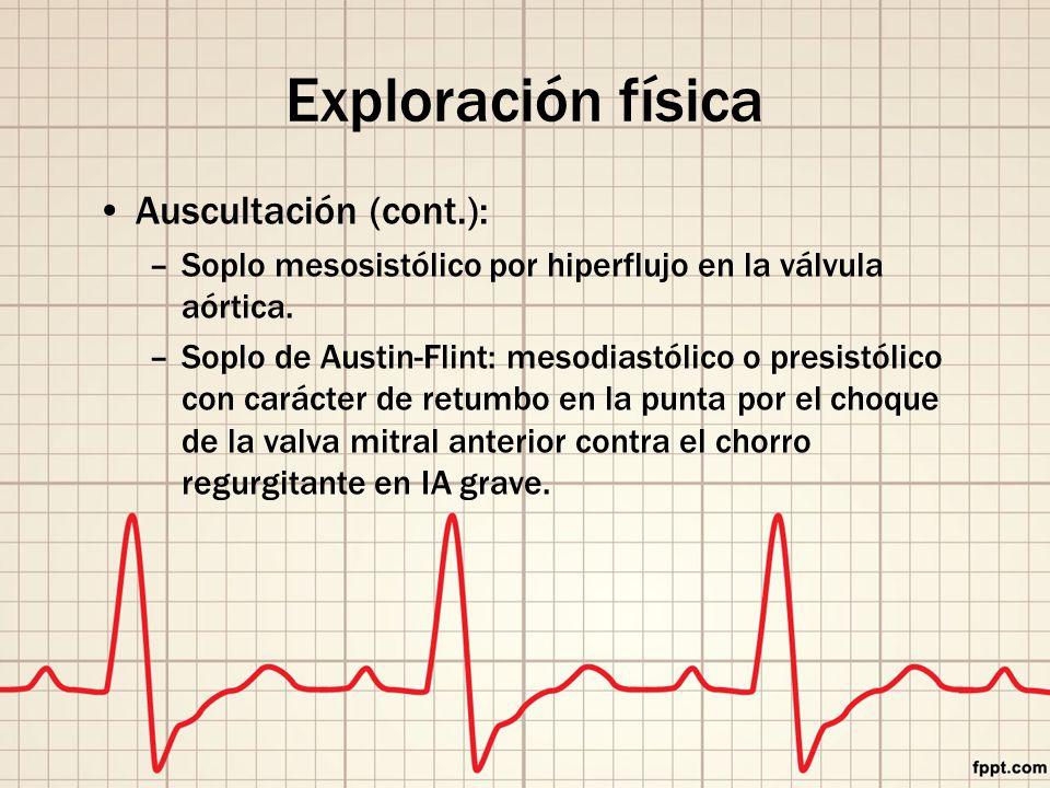 Exploración física Auscultación (cont.): –Soplo mesosistólico por hiperflujo en la válvula aórtica.