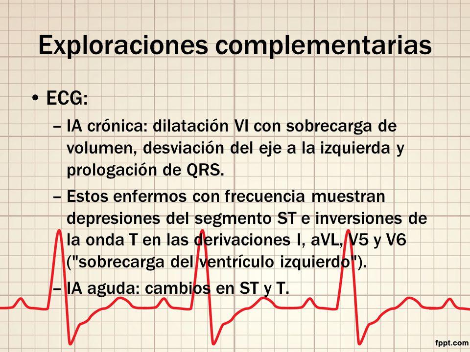 Exploraciones complementarias ECG: –IA crónica: dilatación VI con sobrecarga de volumen, desviación del eje a la izquierda y prologación de QRS.