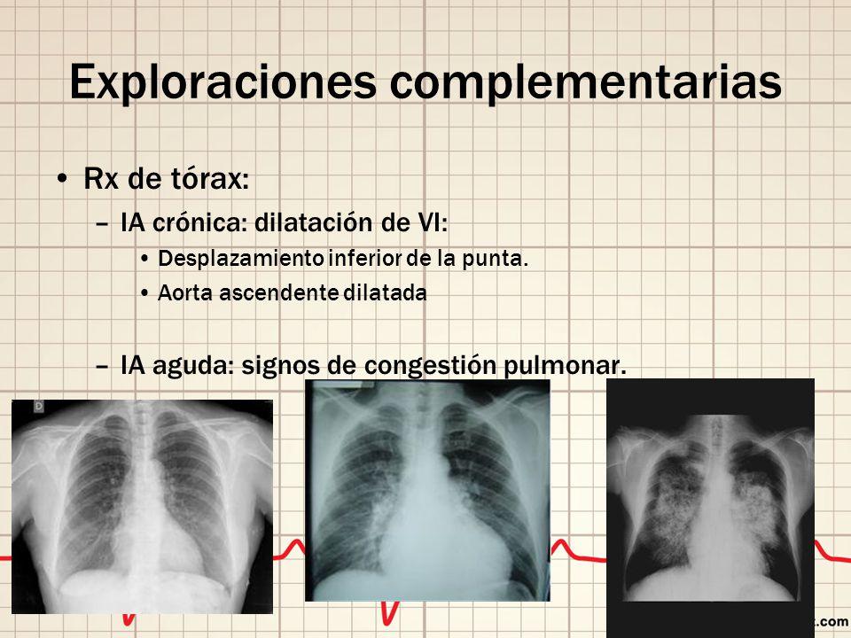 Exploraciones complementarias Rx de tórax: –IA crónica: dilatación de VI: Desplazamiento inferior de la punta.