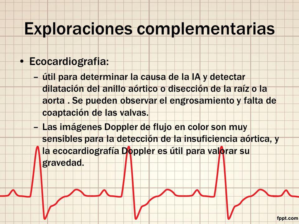 Exploraciones complementarias Ecocardiografia: –útil para determinar la causa de la IA y detectar dilatación del anillo aórtico o disección de la raíz o la aorta.