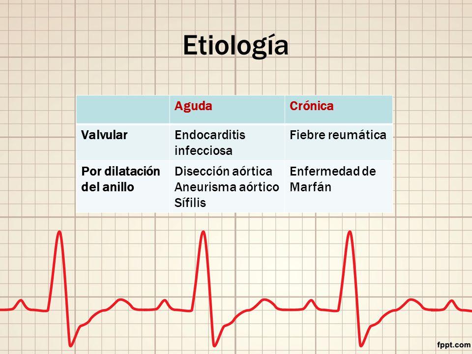 AgudaCrónica ValvularEndocarditis infecciosa Fiebre reumática Por dilatación del anillo Disección aórtica Aneurisma aórtico Sífilis Enfermedad de Marfán Etiología