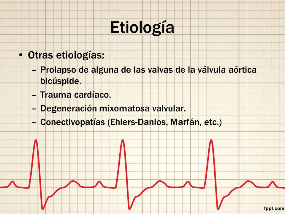 Otras etiologías: –Prolapso de alguna de las valvas de la válvula aórtica bicúspide.