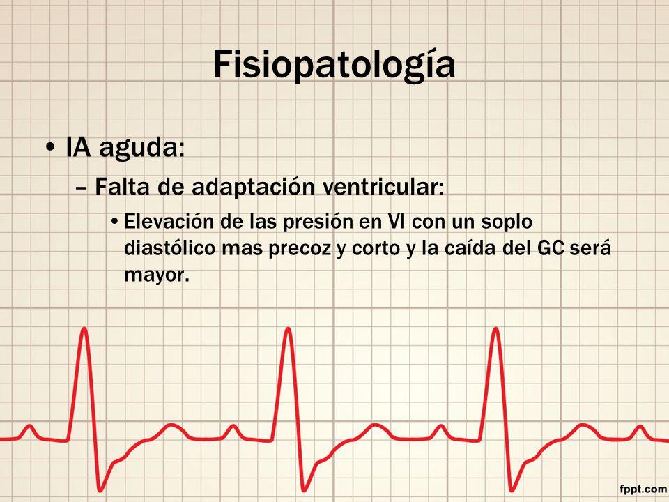 Fisiopatología IA aguda: –Falta de adaptación ventricular: Elevación de las presión en VI con un soplo diastólico mas precoz y corto y la caída del GC será mayor.