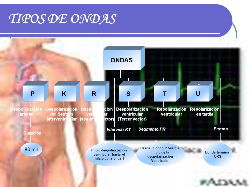 TIPOS DE ONDAS ONDAS PKRSTU Despolarización arterial Duración 80 mn Despolarización del Septum interventricular Despolarización ventricular (segundo V