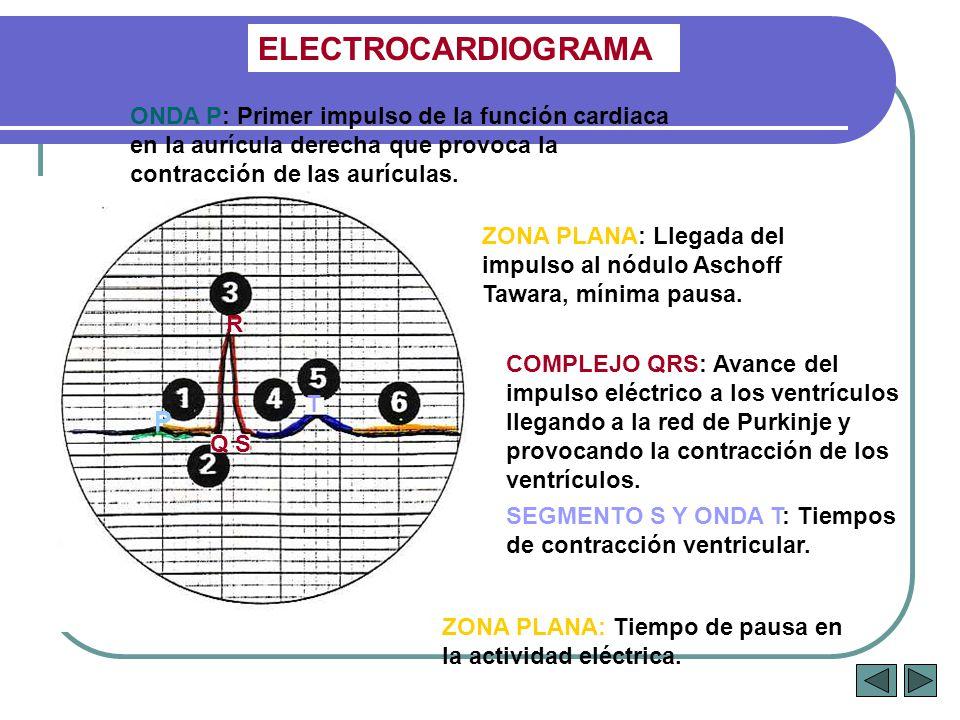 ELECTROCARDIOGRAMA Q S T R ONDA P: Primer impulso de la función cardiaca en la aurícula derecha que provoca la contracción de las aurículas. ZONA PLAN