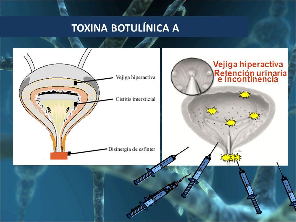 BOTULINA TOXINA BOTULÍNICA A Vejiga hiperactiva e Incontinencia Retención urinaria