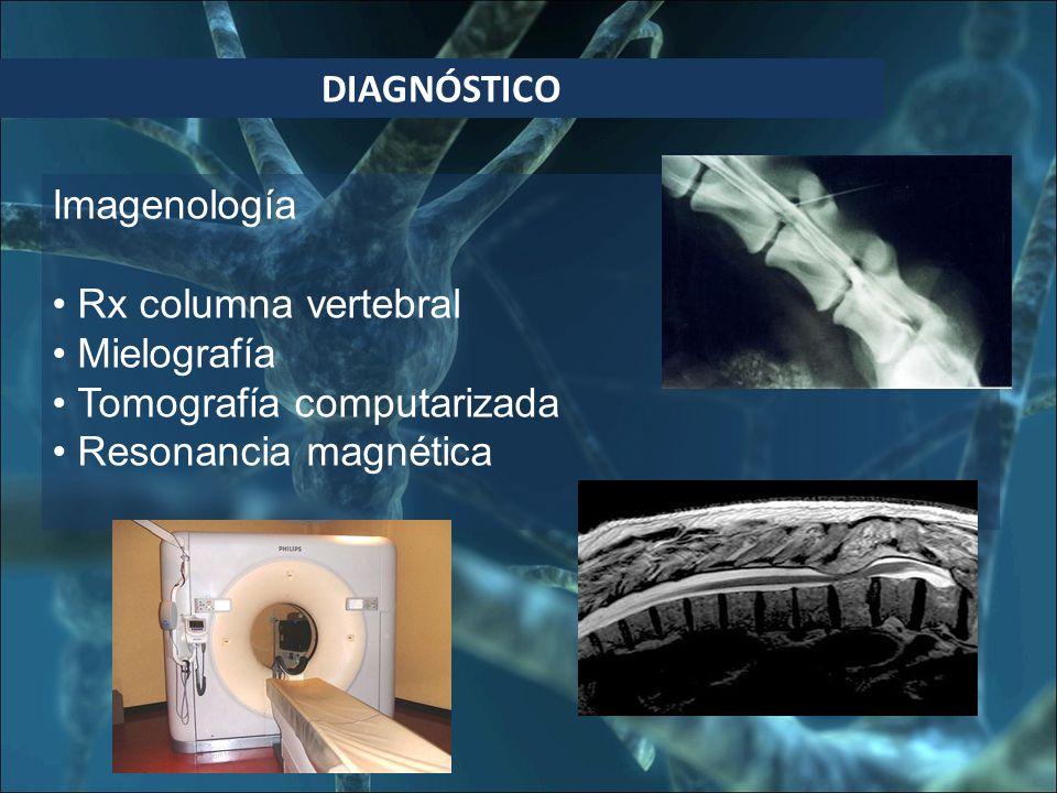 DIAGNÓSTICO Imagenología Rx columna vertebral Mielografía Tomografía computarizada Resonancia magnética