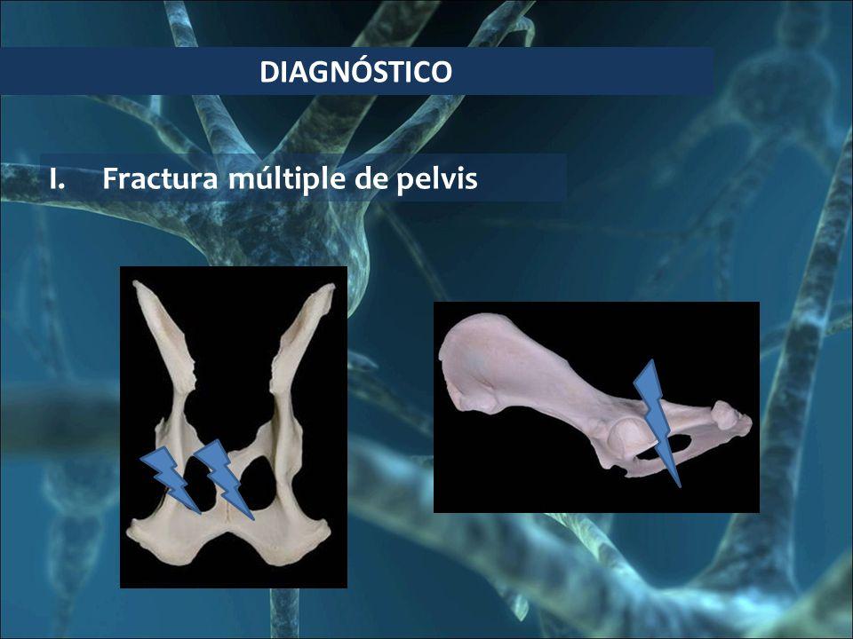 DIAGNÓSTICO I.Fractura múltiple de pelvis