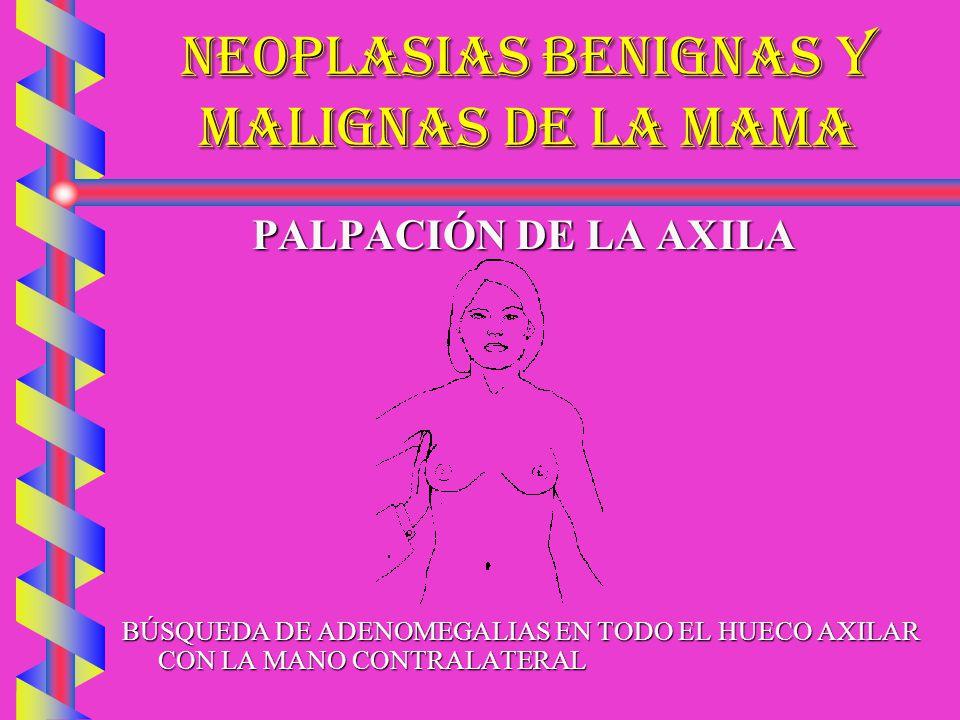 NEOPLASIAS BENIGNAS Y MALIGNAS DE LA MAMA PALPACIÓN DE LA AXILA BÚSQUEDA DE ADENOMEGALIAS EN TODO EL HUECO AXILAR CON LA MANO CONTRALATERAL