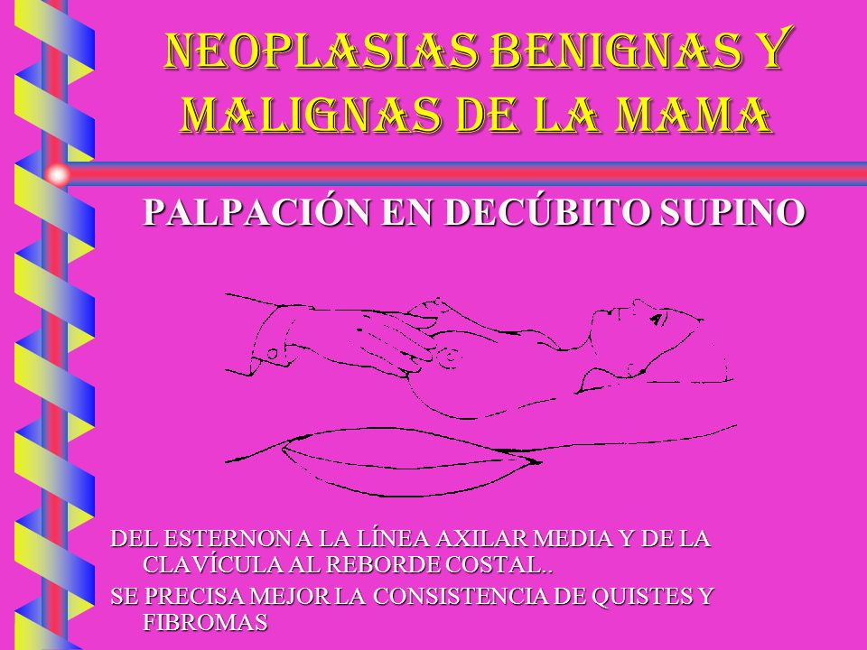 NEOPLASIAS BENIGNAS Y MALIGNAS DE LA MAMA PALPACIÓN EN DECÚBITO SUPINO DEL ESTERNON A LA LÍNEA AXILAR MEDIA Y DE LA CLAVÍCULA AL REBORDE COSTAL.. SE P