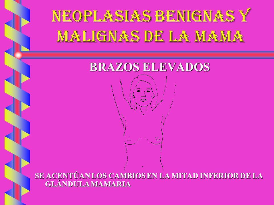 NEOPLASIAS BENIGNAS Y MALIGNAS DE LA MAMA MANOS A LAS CADERAS RETRACCIÓN CON LA CONTRACCIÓN DE LOS PECTORALES.