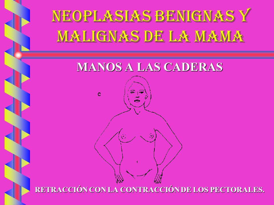 NEOPLASIAS BENIGNAS Y MALIGNAS DE LA MAMA DRENAJE LINFATICODRENAJE LINFATICO PLANOS: SUBAREOLAR Y APONEURÓTICOPLANOS: SUBAREOLAR Y APONEURÓTICO SUBDIAFRAGMÁTICOS Y HEPÁTICOSSUBDIAFRAGMÁTICOS Y HEPÁTICOS TRANSMAMARIOSTRANSMAMARIOS MAMARIOS INTERNOS Y MEDIASTÍNICOSMAMARIOS INTERNOS Y MEDIASTÍNICOS SUBCLAVIOSSUBCLAVIOS PECTORALESPECTORALES AXILARES CENTRALESAXILARES CENTRALES BRONQUIALESBRONQUIALES SUBESCAPULARESSUBESCAPULARES