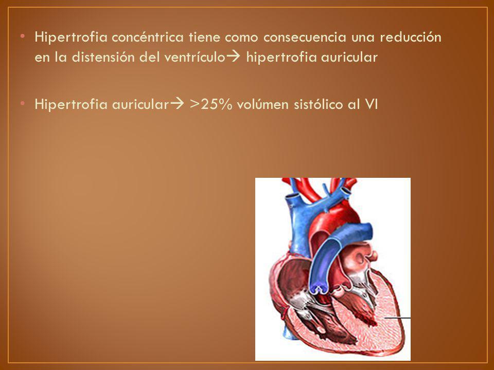 Hipertrofia concéntrica tiene como consecuencia una reducción en la distensión del ventrículo hipertrofia auricular Hipertrofia auricular >25% volúmen