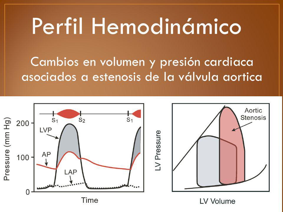 Cambios en volumen y presión cardiaca asociados a estenosis de la válvula aortica Perfil Hemodinámico