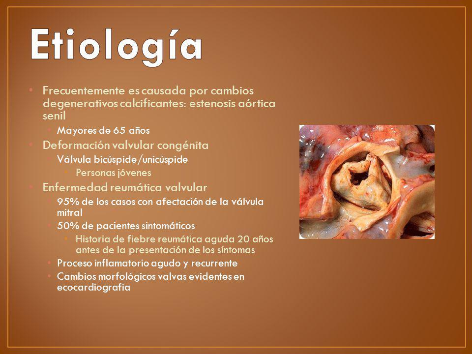 Frecuentemente es causada por cambios degenerativos calcificantes: estenosis aórtica senil Mayores de 65 años Deformación valvular congénita Válvula b