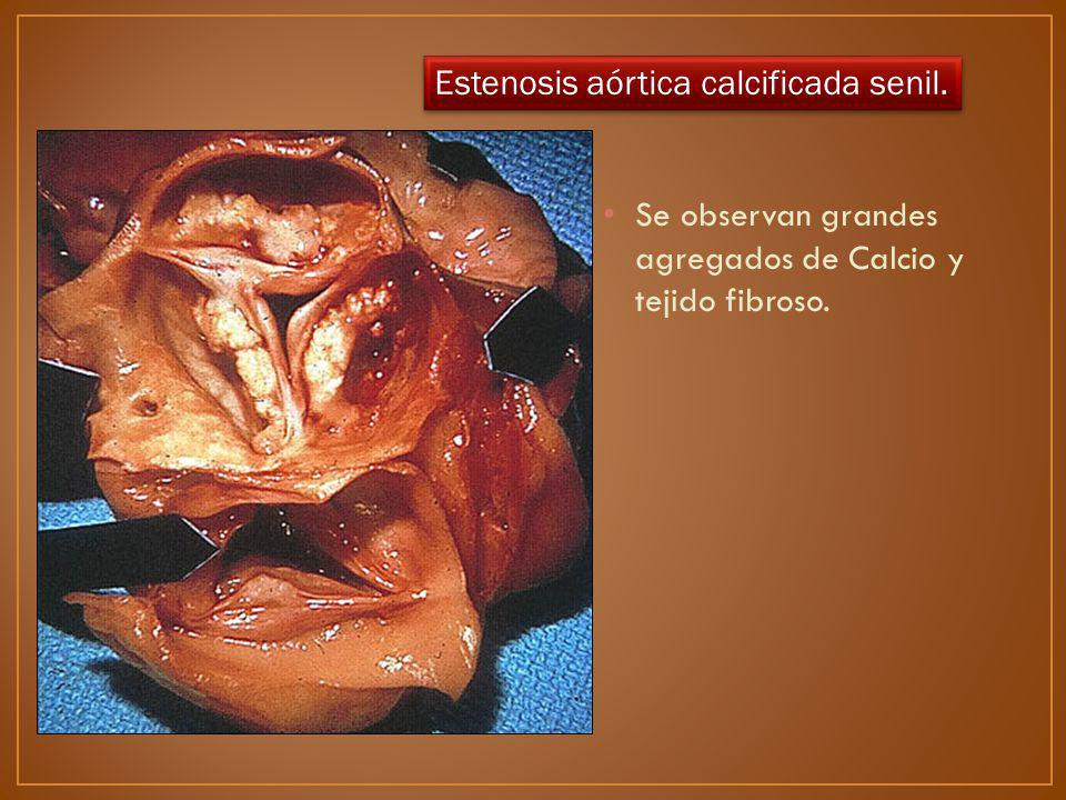 Se observan grandes agregados de Calcio y tejido fibroso. Estenosis aórtica calcificada senil.