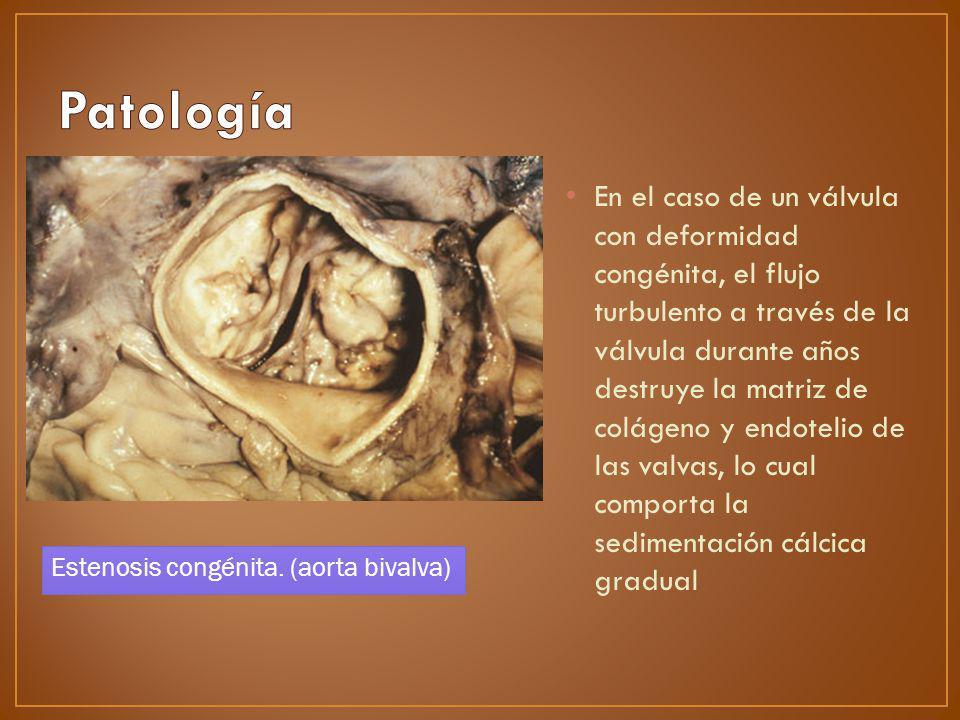 En el caso de un válvula con deformidad congénita, el flujo turbulento a través de la válvula durante años destruye la matriz de colágeno y endotelio