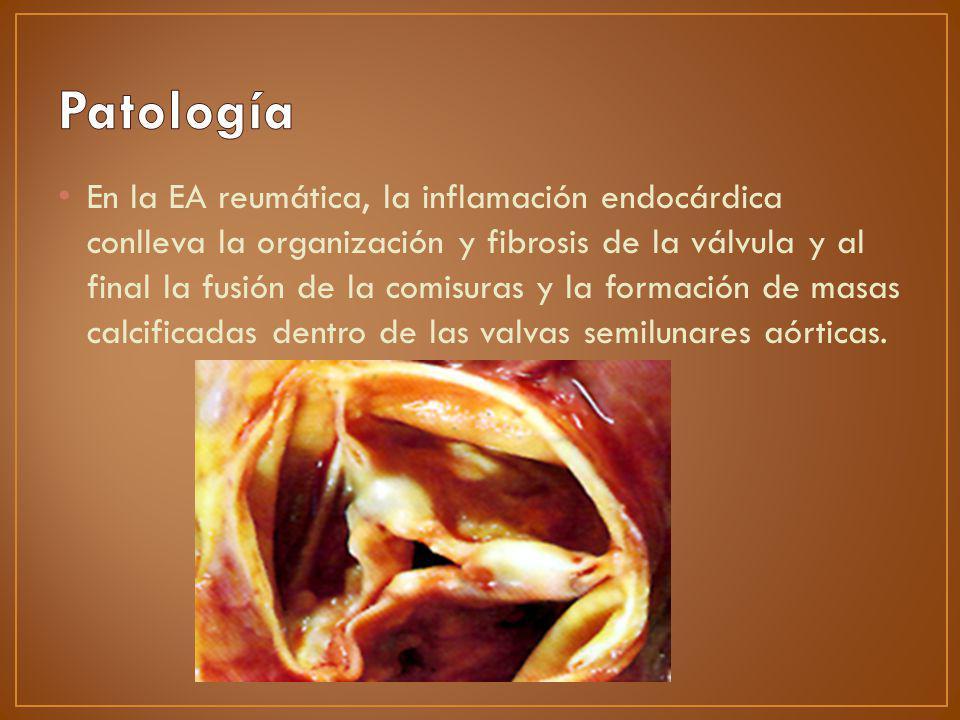 Engrosamiento y fibrosis de las valvas Reducción de la apertura valvular durante el sístole.
