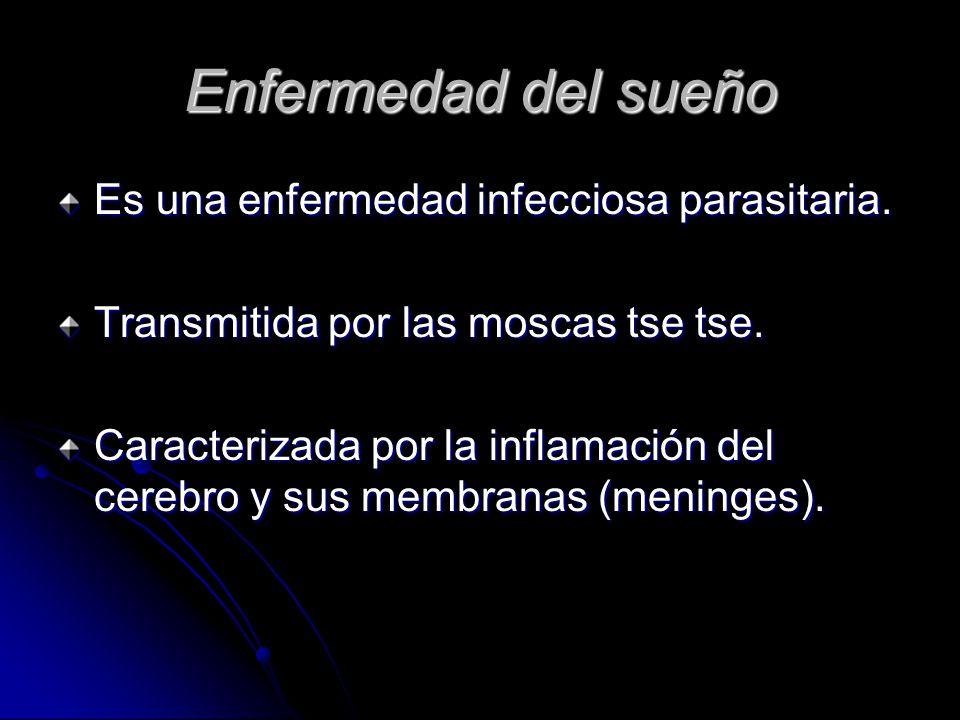 Enfermedad del sueño Es una enfermedad infecciosa parasitaria.