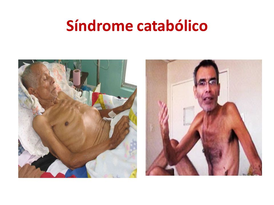 Síndrome catabólico