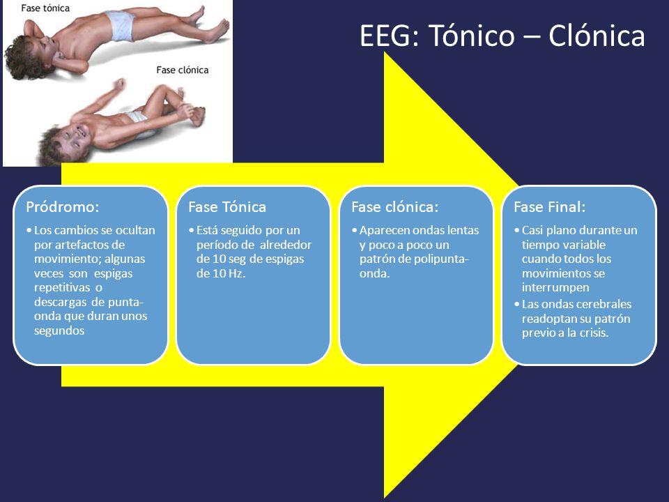 EEG: Tónico – Clónica Pródromo: Los cambios se ocultan por artefactos de movimiento; algunas veces son espigas repetitivas o descargas de punta- onda que duran unos segundos Fase Tónica Está seguido por un período de alrededor de 10 seg de espigas de 10 Hz.