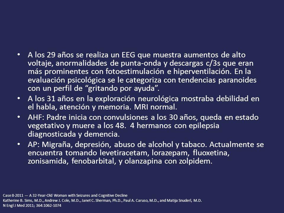 A los 29 años se realiza un EEG que muestra aumentos de alto voltaje, anormalidades de punta-onda y descargas c/3s que eran más prominentes con fotoestimulación e hiperventilación.