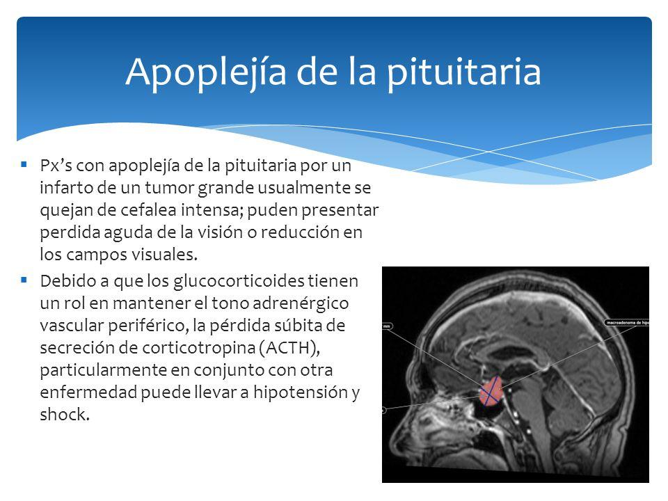 Pxs con apoplejía de la pituitaria por un infarto de un tumor grande usualmente se quejan de cefalea intensa; puden presentar perdida aguda de la visi