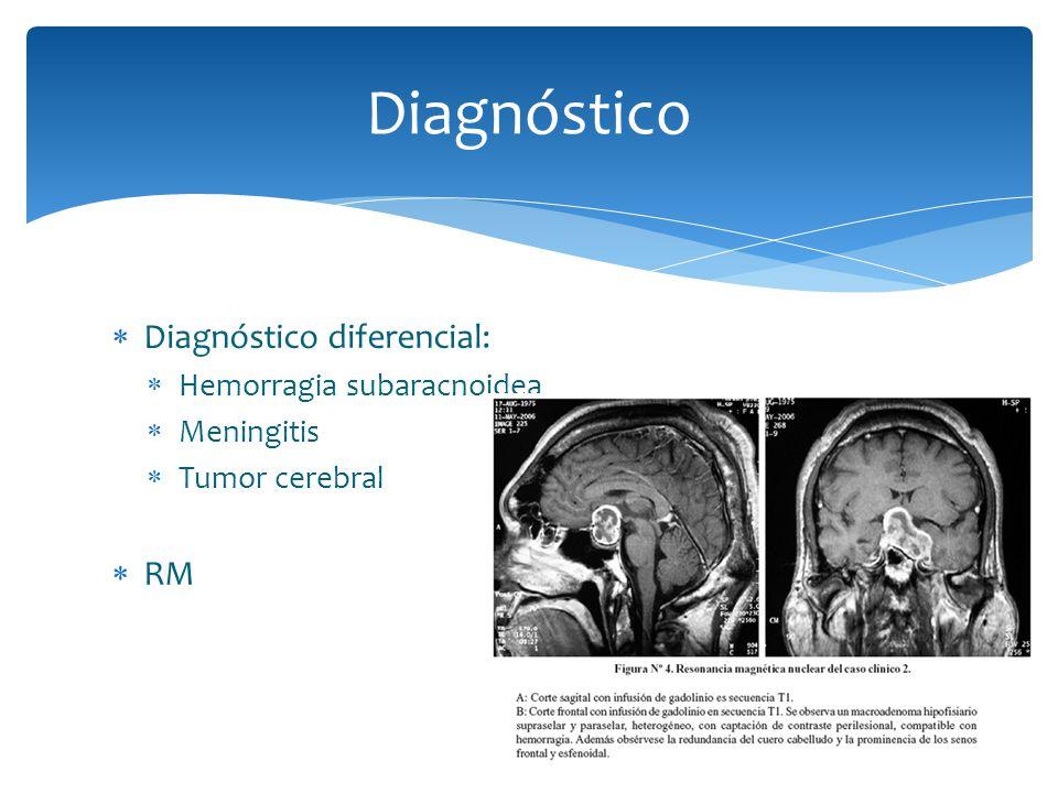 Diagnóstico Diagnóstico diferencial: Hemorragia subaracnoidea Meningitis Tumor cerebral RM