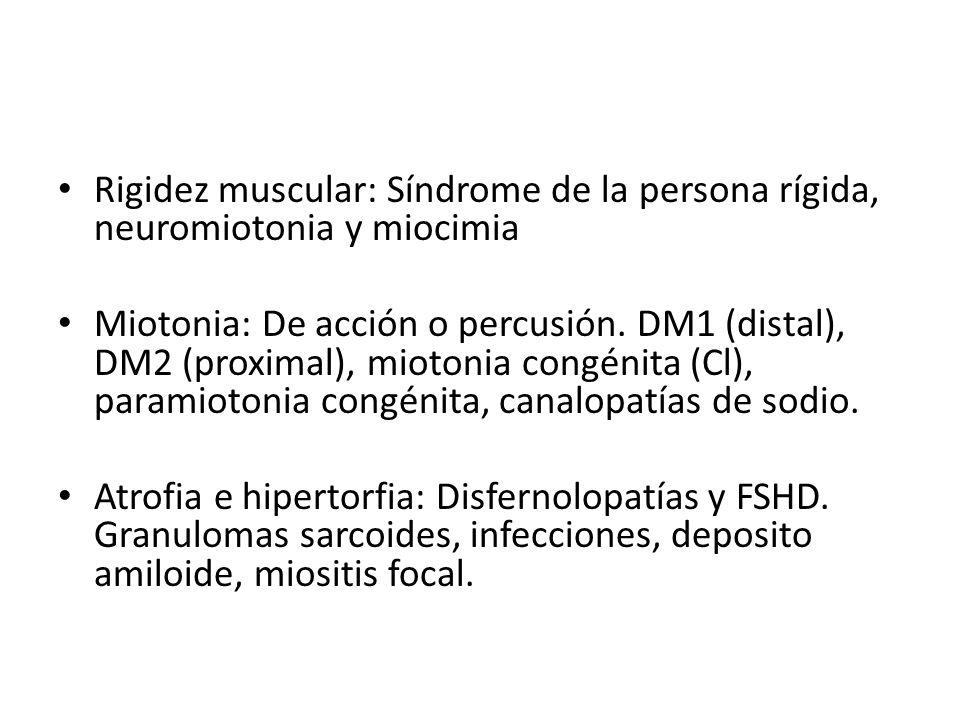 Rigidez muscular: Síndrome de la persona rígida, neuromiotonia y miocimia Miotonia: De acción o percusión. DM1 (distal), DM2 (proximal), miotonia cong
