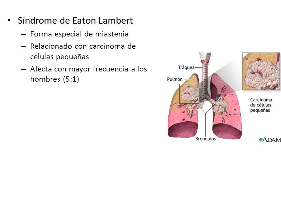 Síndrome de Eaton Lambert – Forma especial de miastenia – Relacionado con carcinoma de células pequeñas – Afecta con mayor frecuencia a los hombres (5