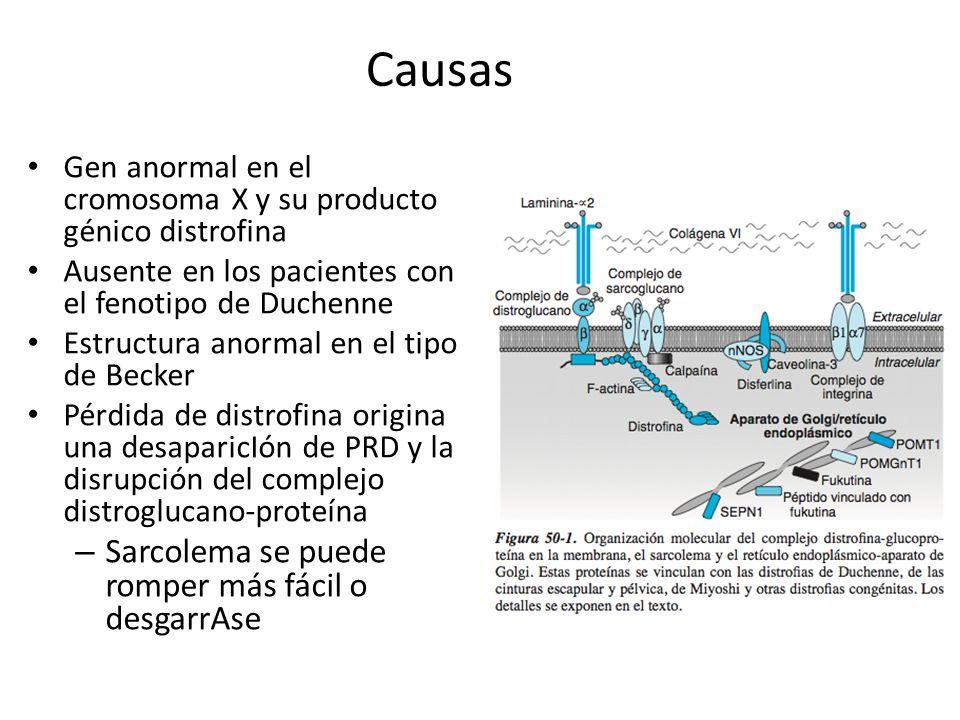 Causas Gen anormal en el cromosoma X y su producto génico distrofina Ausente en los pacientes con el fenotipo de Duchenne Estructura anormal en el tip