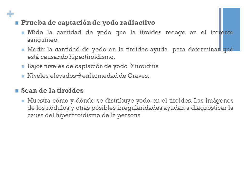 + Prueba de captación de yodo radiactivo Mide la cantidad de yodo que la tiroides recoge en el torrente sanguíneo. Medir la cantidad de yodo en la tir