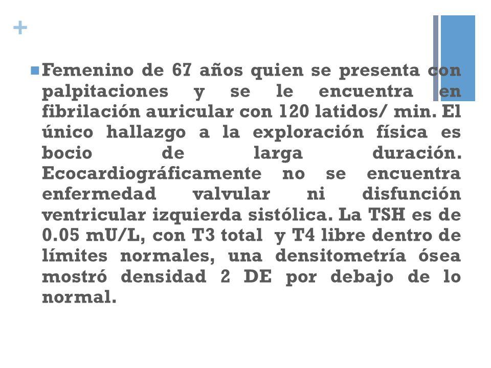 + Femenino de 67 años quien se presenta con palpitaciones y se le encuentra en fibrilación auricular con 120 latidos/ min. El único hallazgo a la expl