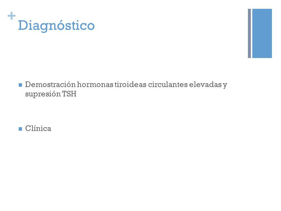 + Diagnóstico Demostración hormonas tiroideas circulantes elevadas y supresión TSH Clínica