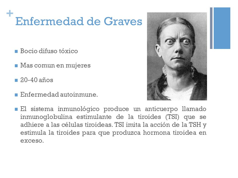 + Enfermedad de Graves Bocio difuso tóxico Mas comun en mujeres 20-40 años Enfermedad autoinmune. El sistema inmunológico produce un anticuerpo llamad