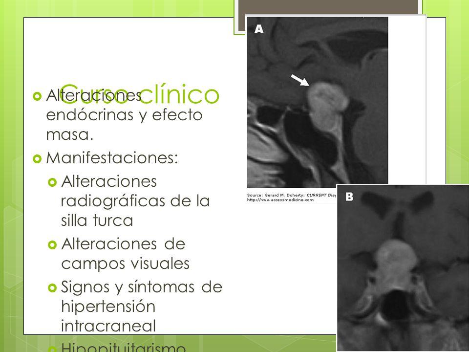 Curso clínico Alteraciones endócrinas y efecto masa. Manifestaciones: Alteraciones radiográficas de la silla turca Alteraciones de campos visuales Sig