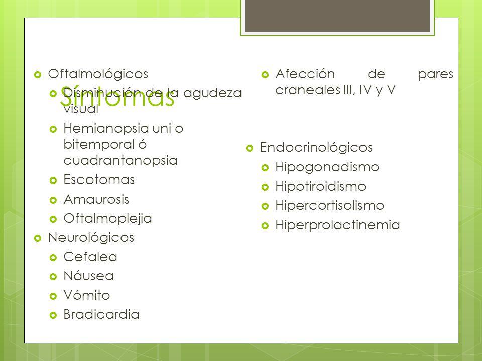 Síntomas Oftalmológicos Disminución de la agudeza visual Hemianopsia uni o bitemporal ó cuadrantanopsia Escotomas Amaurosis Oftalmoplejia Neurológicos