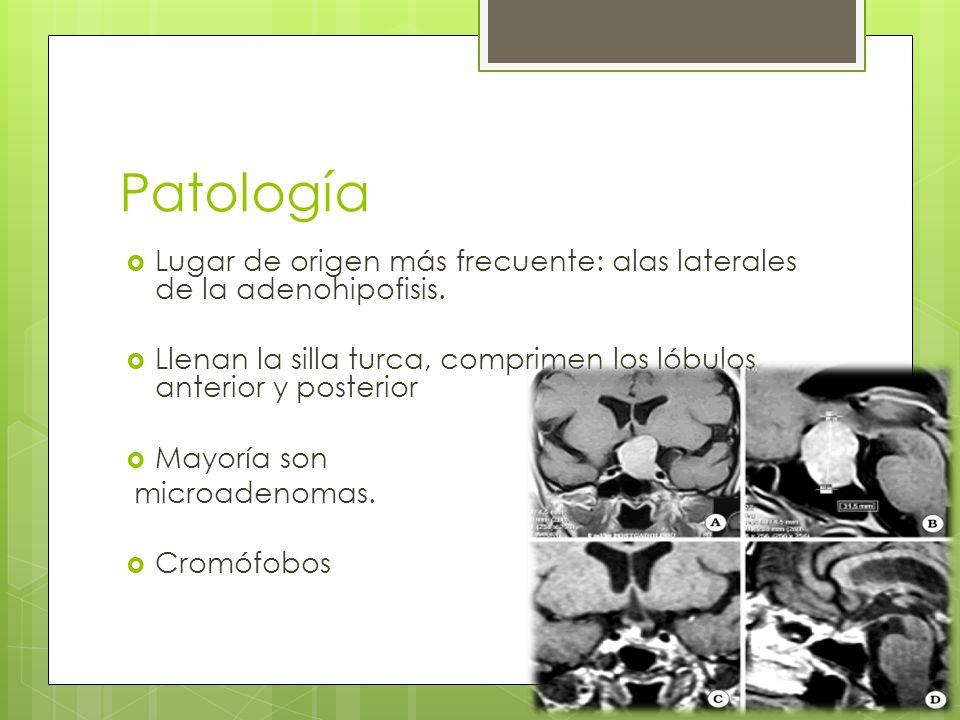 Patología Lugar de origen más frecuente: alas laterales de la adenohipofisis. Llenan la silla turca, comprimen los lóbulos anterior y posterior Mayorí