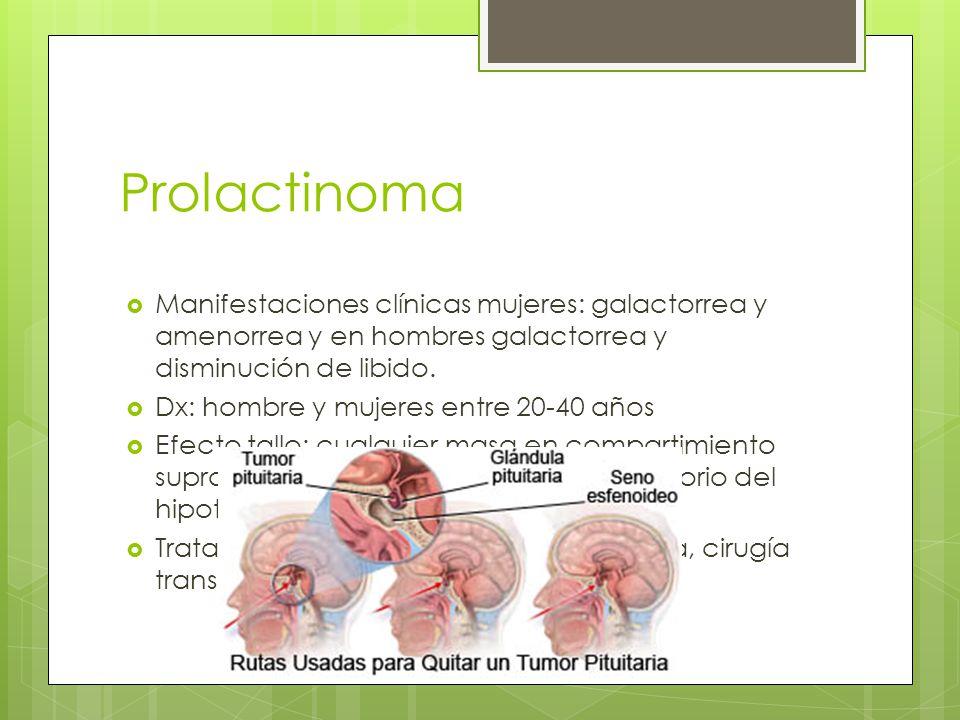 Prolactinoma Manifestaciones clínicas mujeres: galactorrea y amenorrea y en hombres galactorrea y disminución de libido. Dx: hombre y mujeres entre 20