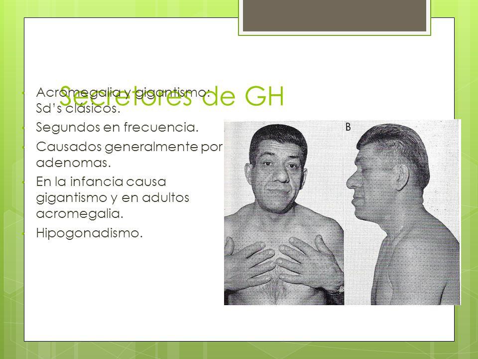 Secretores de GH Acromegalia y gigantismo: Sds clásicos. Segundos en frecuencia. Causados generalmente por adenomas. En la infancia causa gigantismo y